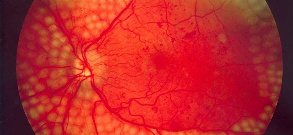 Диабетическая ретинопатия лечение симптомы