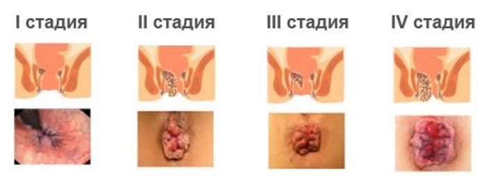Наружный геморрой фото как лечить
