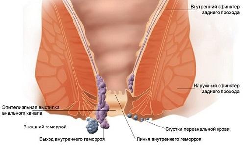 От чего геморрой у мужчин симптомы лечение