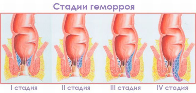 Лекарства от геморроя 3 степени