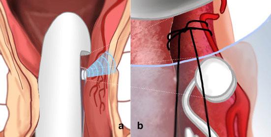 Оперативное лечение геморроя методом hal или rar
