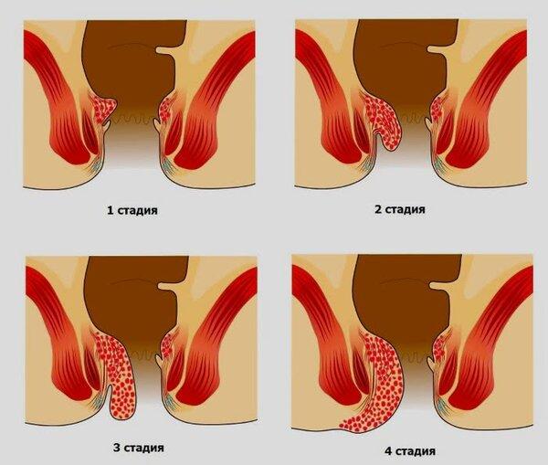 Геморрой фото лечение у женщин
