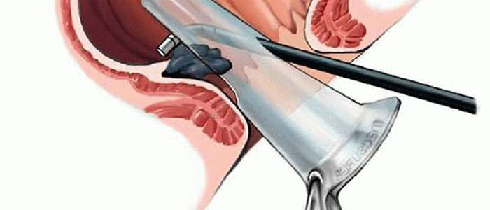 Геморрой лечение инфракрасное