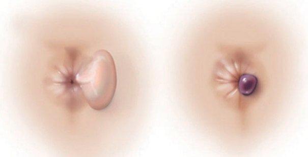 Тромбированный наружный геморроидальный узел