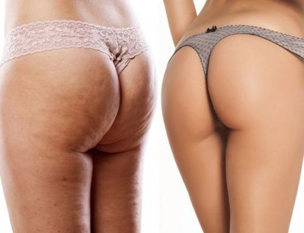 Женщины с целлюлитом фото до и после