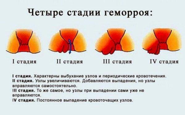 Геморрой внутренний шишки лечение свечи