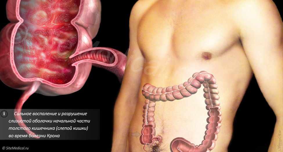 Лечение геморроя при болезни крона