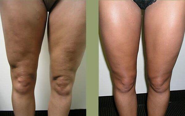 Вакуумный баночный массаж от целлюлита фото до и после