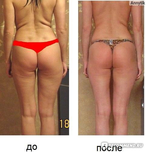 Без целлюлита до и после фото