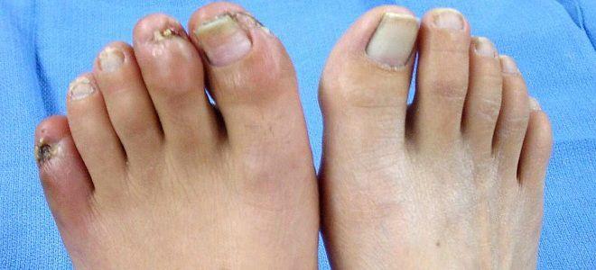 Ангиопатия ног диабетическая стадии