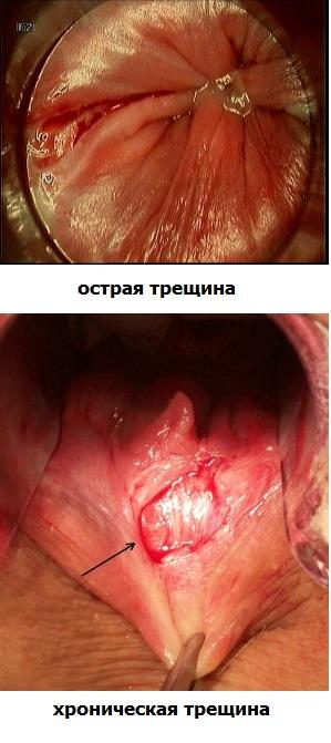 Геморрой трещина внутри