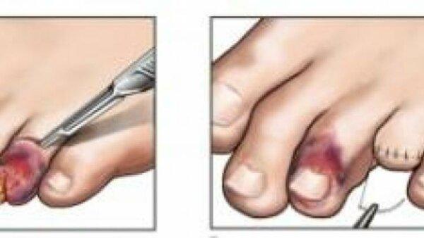 Удаление пальцев стопы при сахарном диабете