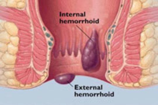 Геморрой может от противозачаточных