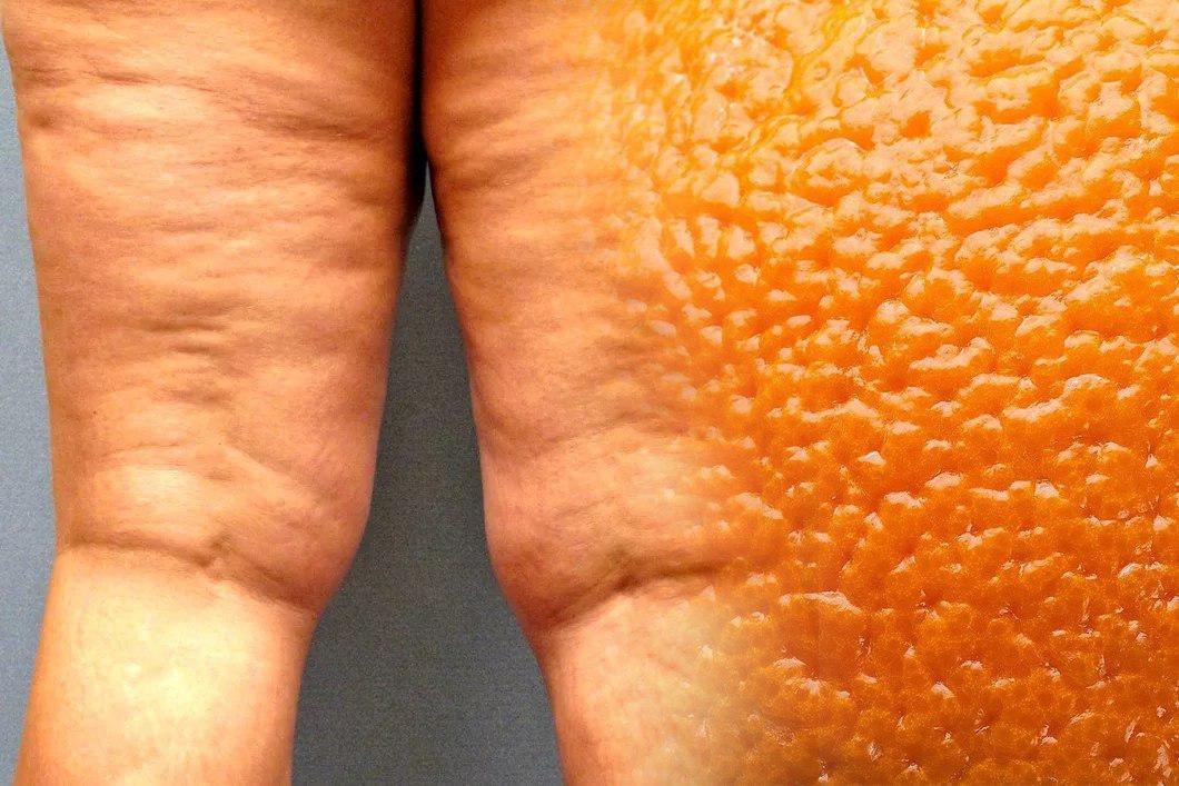 Как избавиться от целлюлита апельсиновой коркой