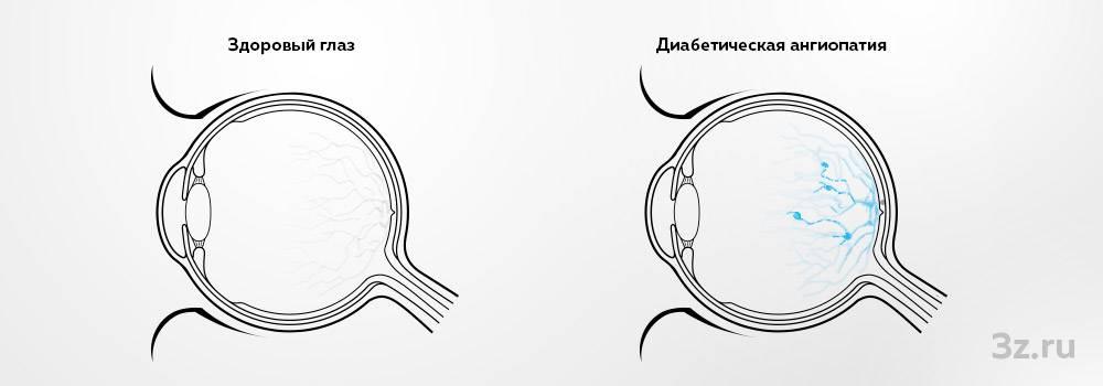 Ангиопатия сетчатки глаза осложненная диабетом каталог