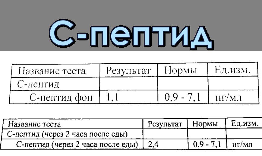 Анализ крови сахар снижен