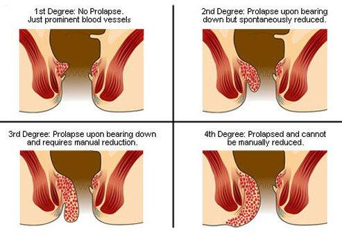 Геморрой при беременности и народные методы лечения