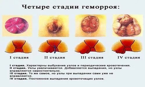 Начальная стадия геморроя у беременных фото